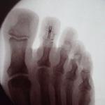 DIPJ arthrodesis