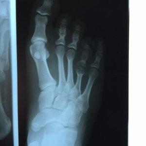 The x-ray reveals a signifcant shortening of the fourth metatarsal of over 10mm.