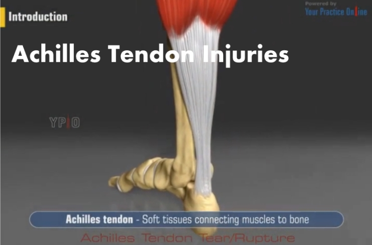 Achilles Tendon Injuries Video