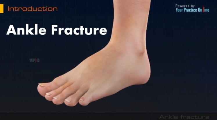 Ankle Fracture Video