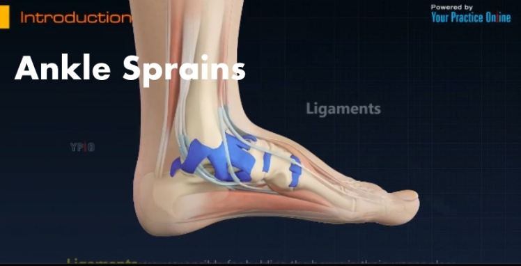 Ankle Sprains Video