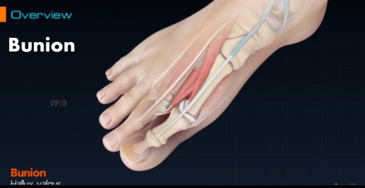 bunion video