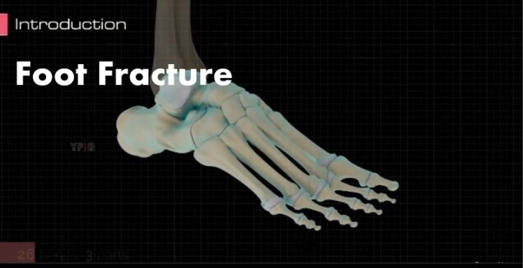 Foot Fracture Video