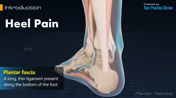 Heel Pain Video