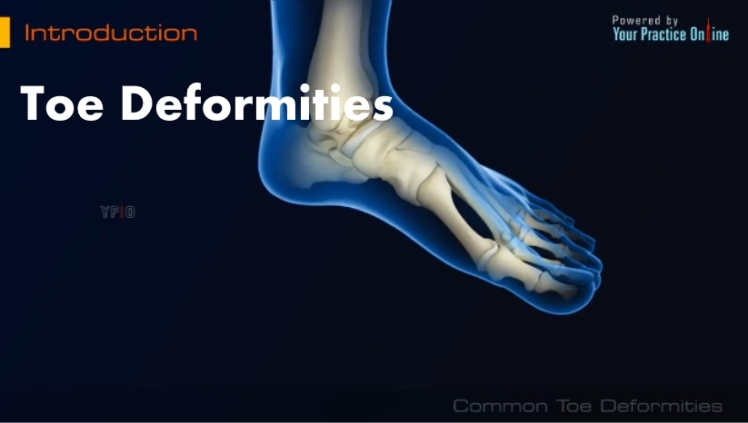 Toe Deformities Video